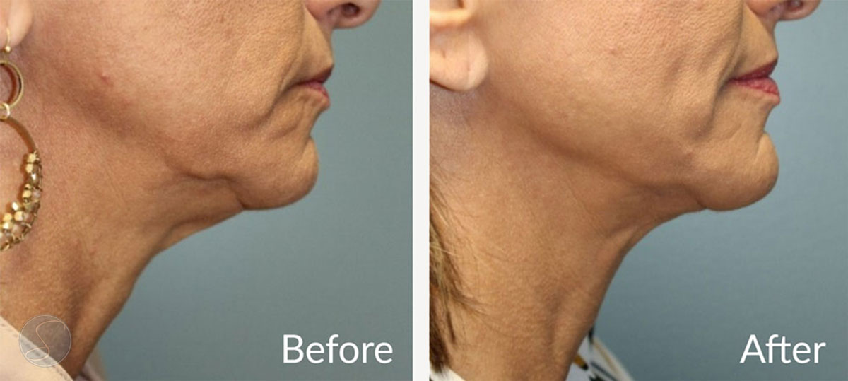 BodyTite Before and After neck line